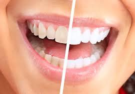 Отбеливание зубов в домашних условиях и в клинике