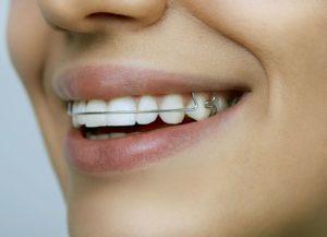 Опытный стоматолог и пластинки для зубов